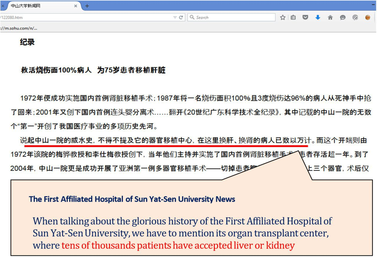The First Affiliated Hospital of Sun Yat-Sen University News When talking about the glorious history of the First Affiliated Hospital of Sun Yat-Sen University, we have to mention its organ transplant center, where tens of thousands patients have accepted liver or kidney